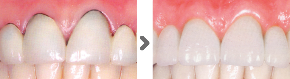 estética dental zirconio en Sant Joan Despí
