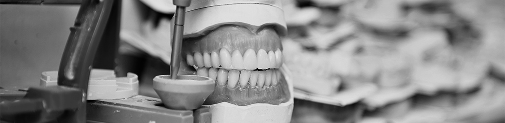 implantes dentales en Sant Joan Despí