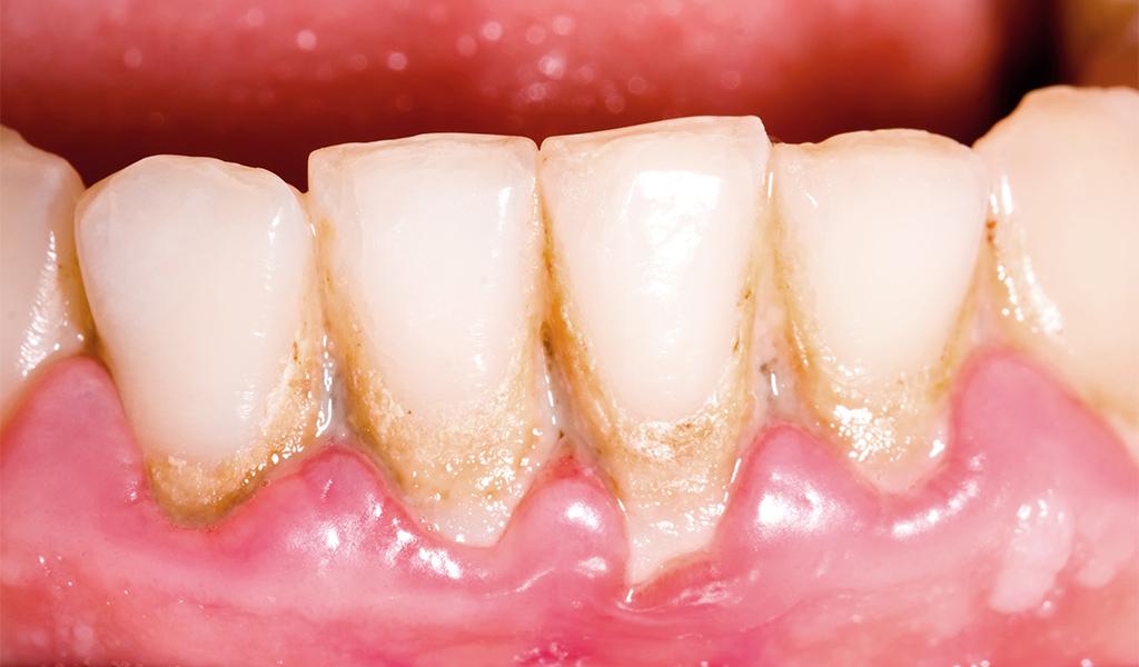 periodoncia en Sant Joan Despí